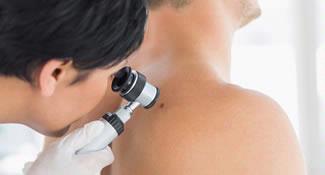 Nuevo Programa Iderma Prevent-La revisión de tu piel no puede esperar