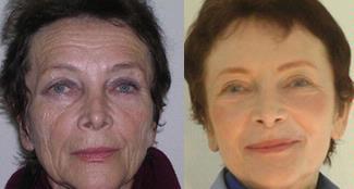 REJUVENECIMIENTO FACIAL CON FENOL-La alternativa a la cirugia y al lifting facial