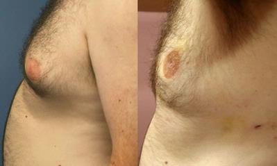 Lipoláser para tratar la ginecomastia