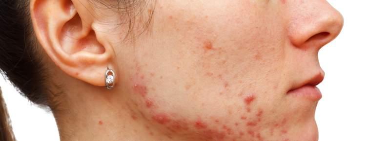 Cuidados del acné adulto