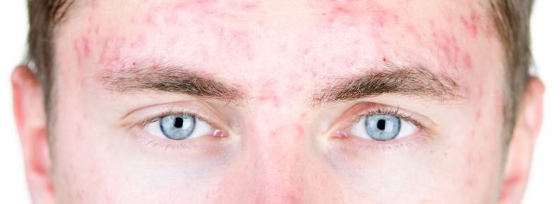 El sol en personas con acné
