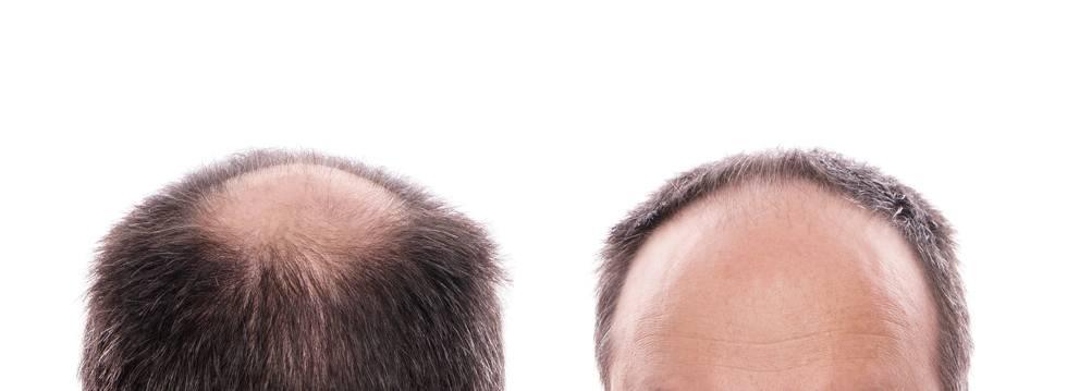 ¿Cómo se manifiesta la alopecia androgenética?