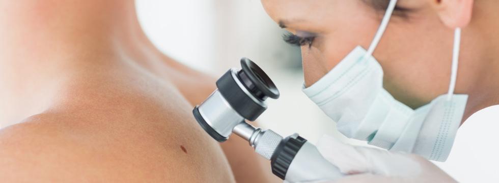 Jornada de concienciación sobre el cáncer de piel
