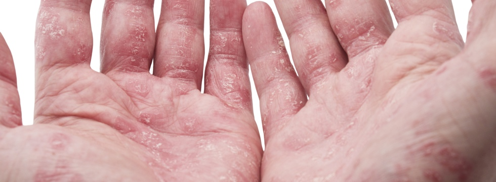 Posts about Psoriasis written by ninabenito 2
