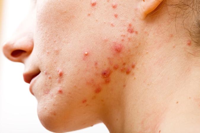 tratamiento acne isotretinoina