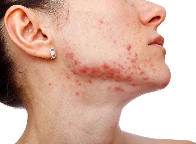 tratamiento acne con isotretinoina