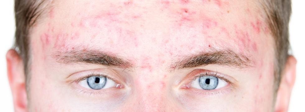 Todo sobre la isotretinoína: desmontando mitos