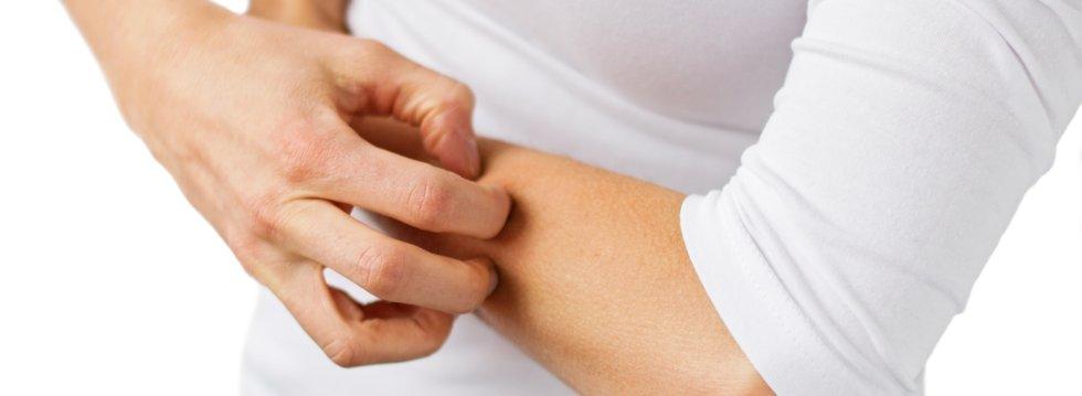 El sol en personas con dermatitis atópica o ictiosis