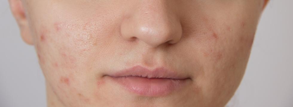 Tratamientos para las cicatrices del acné