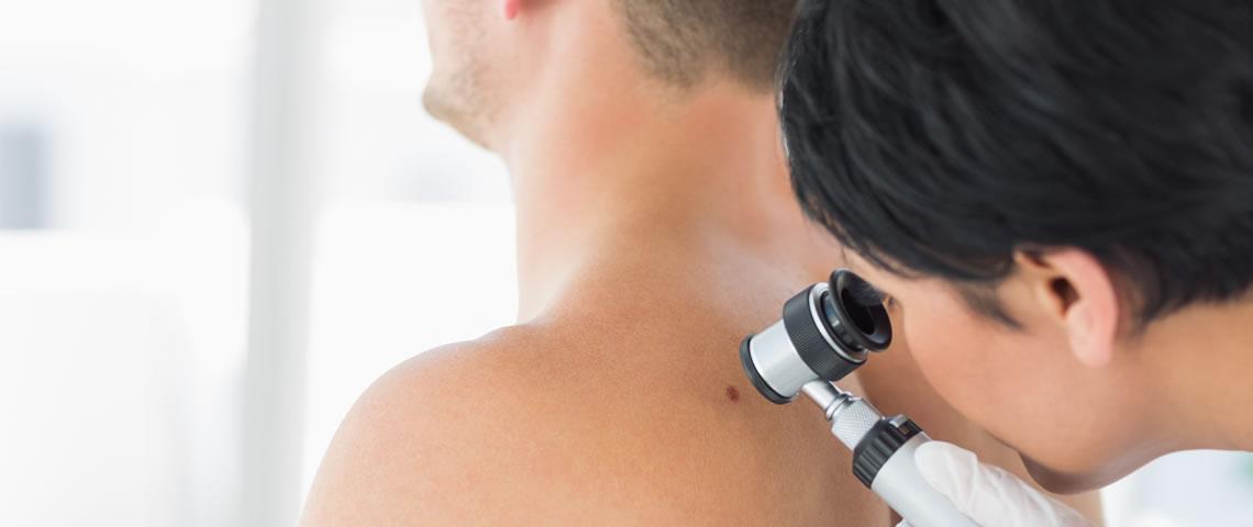 Prevención y diagnóstico precoz del cáncer de piel