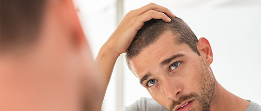 Caída del cabello en el hombre