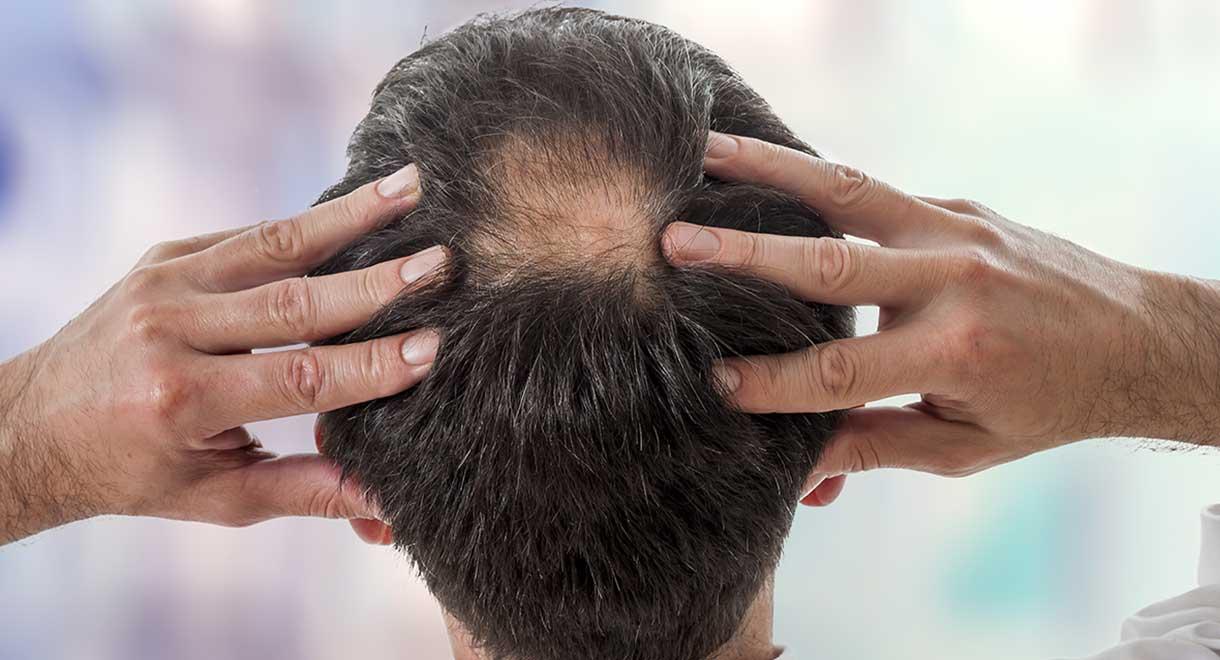 Frenar la caída del cabello con mesoterapia capilar
