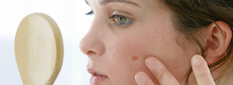 Cómo examinarse la piel