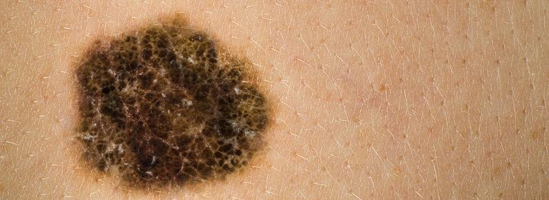 Tratamiento del melanoma