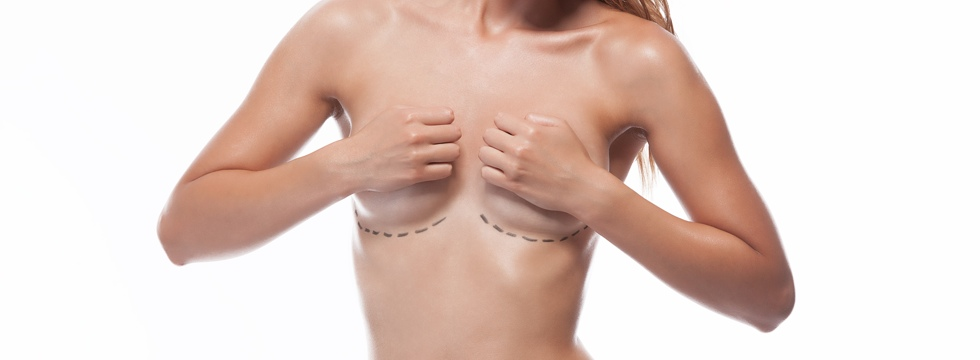 Aumento de pecho con prótesis