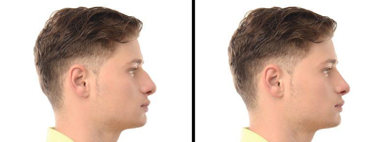 Remodelación nasal