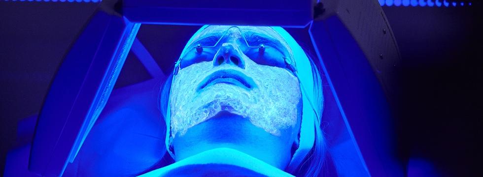 Terapia biofotónica para el acné