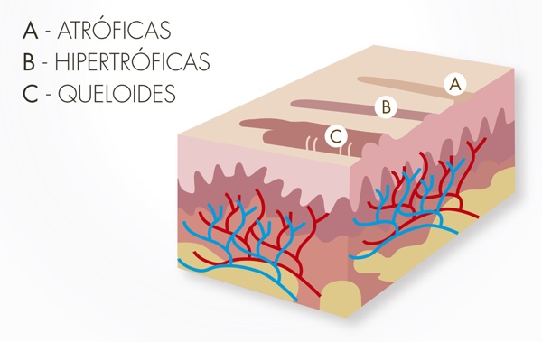 tipos cicatrices