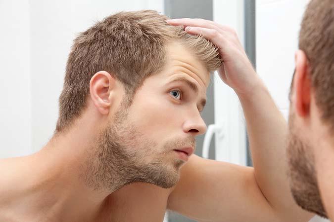 trasplante cabello