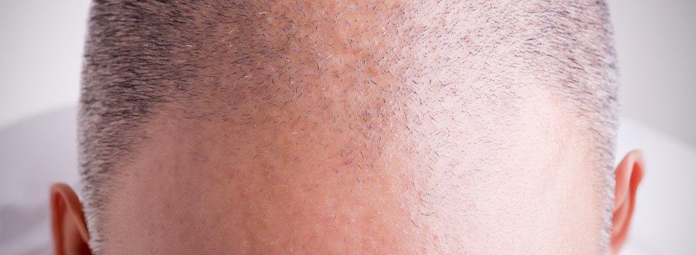 Las técnicas FUSS y FUE en el trasplante de pelo