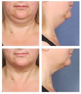 resultados tratamiento belkyra